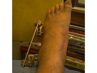My left foot showing scrap metal collection